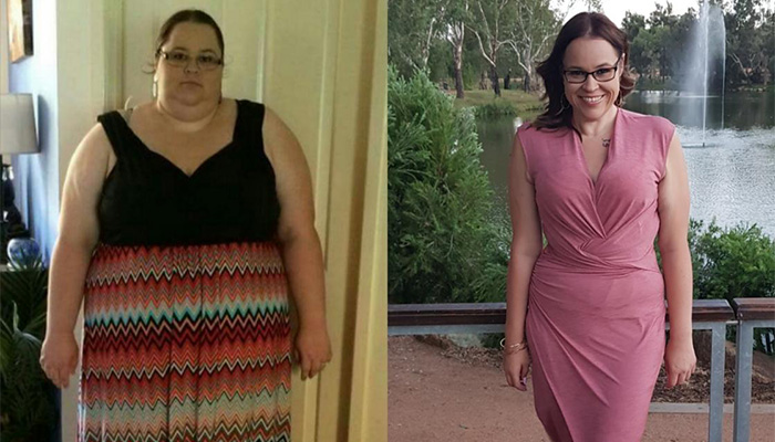 Access patient Jessica Dean who lost half her body weight
